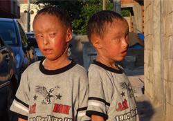 Balık Pulu Hastalığına Yakalanan İkizler Yardım Bekliyor