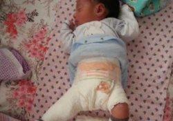 Doğumda bacağı kırılan bebek için 43 bin lira tazminat