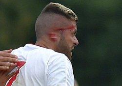 Yıldız futbolcunun sağ kulağı koptu