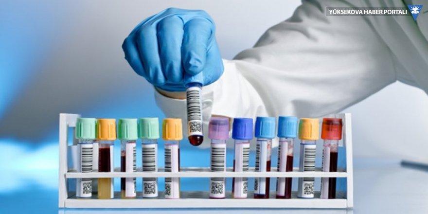 Kanser testi geliştirildi